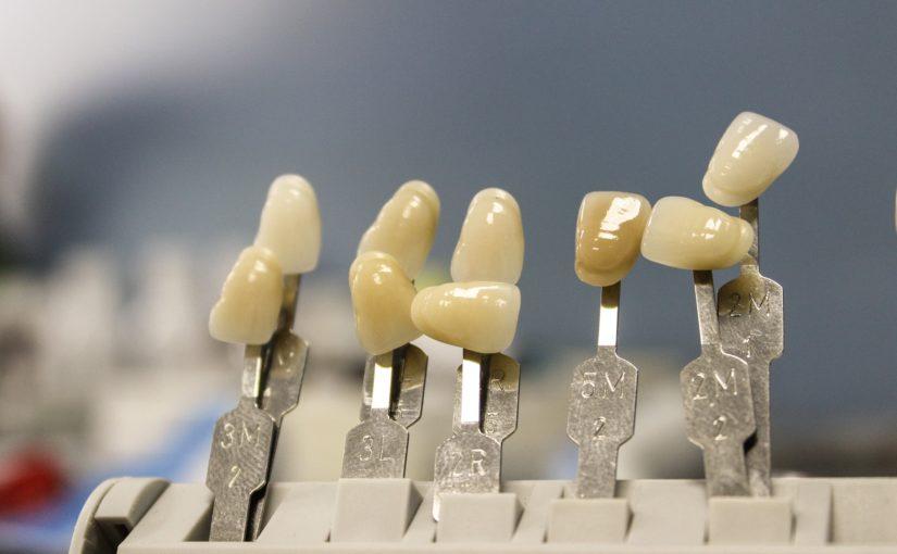 Prześliczne nienaganne zęby oraz olśniewający cudny uśmieszek to powód do zadowolenia.